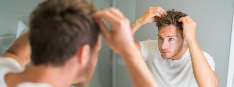 A man looking at flakes in his hair, one of the most common scalp problems.