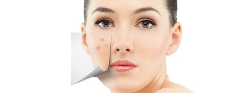 before/after woman with skin blemishes being removed