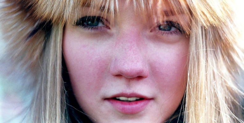 girl with redness of the skin on her face